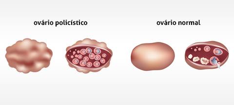 Síndrome dos Ovários Policísticos diferença da aparência de um ovário normal
